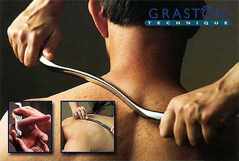 Graston Technique 174 At Blue Heron Chiropractic Blue